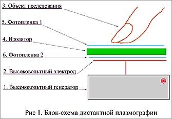 Моноимпульсная плазмография