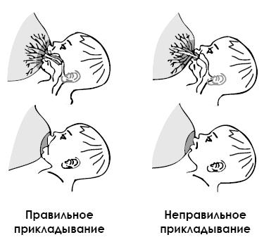Сосок и околососковый кружок ареол