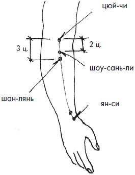 Почему коленный сустав хрустит