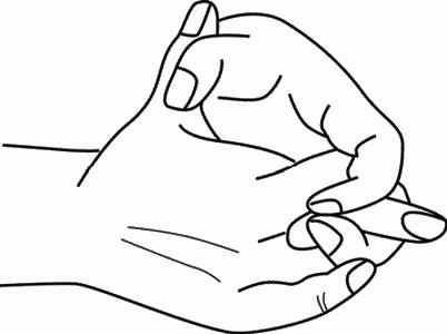 Нестенозирующий атеросклероз сонной артерии