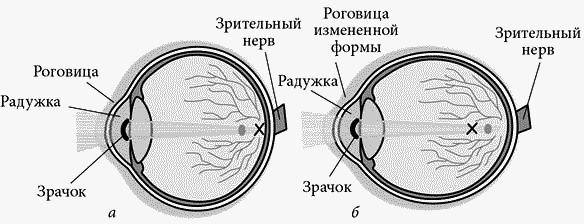 Что помогает восстановить зрение при близорукости