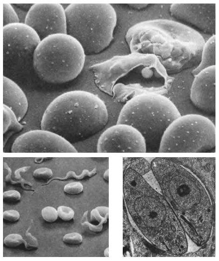 Паразиты пожирающие сперму