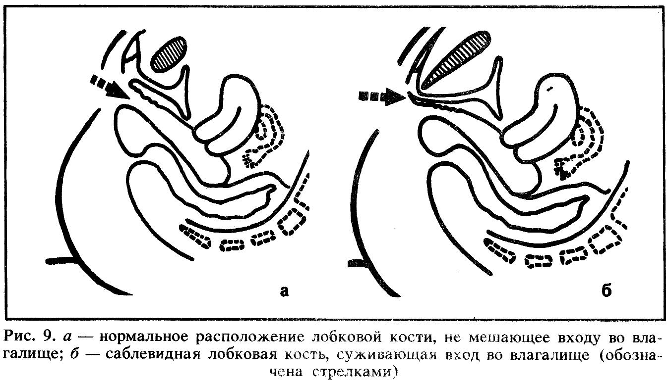 Фото строение и половой акт и сперма в женщине в анатомическом разрезе 28 фотография