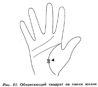 квадрат на линии жизни на правой руке заболевания