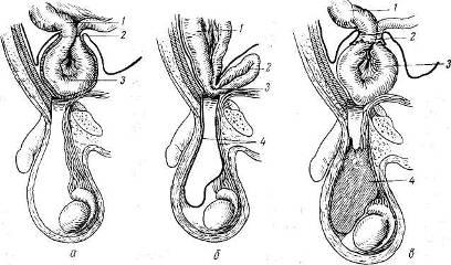 Патологоанатомические изменения при ущемлении грыж и осложнения ...