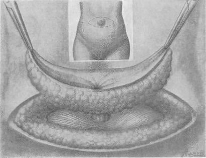 Книга: Хирургия грыж брюшной