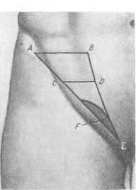 анатомо топографические данные хирургия грыж брюшной стенки