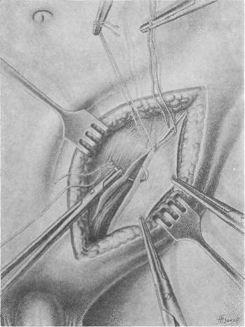 Хирургия грыж брюшной стенки