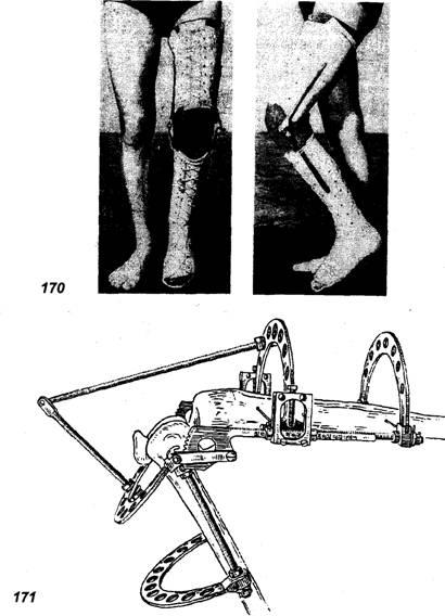какими средствами лечат коленный сустав