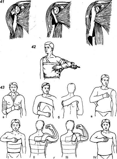 какие упражнения при переломе предплечья лучевой кости высокотехнологичных
