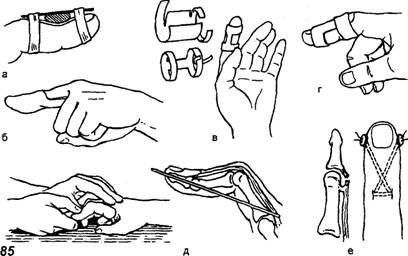 ПОВРЕЖДЕНИЯ СУХОЖИЛИЙ РАЗГИБАТЕЛЕЙ ПАЛЬЦЕВ КИСТИ - Травматология