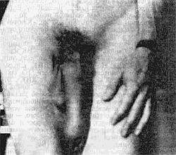 Член мужской половой большие размеры