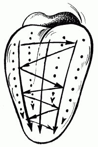 Логопедический массаж при дизартрии