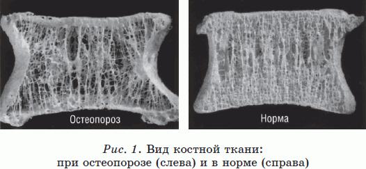остеопороз реферат