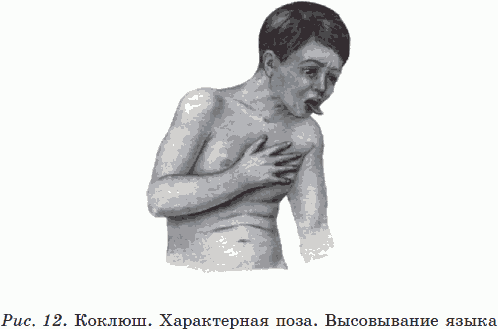 КОРОТКО О КРЫСИНОМ ЦЕПНЕ - Новые тайны нераспознанных диагнозов ...