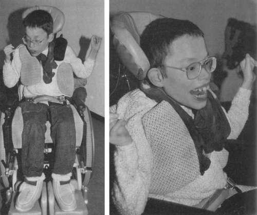 Помощь детям с церебральным параличом