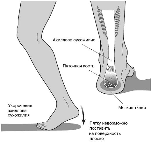 Воспаление влагалища лечение народным методом
