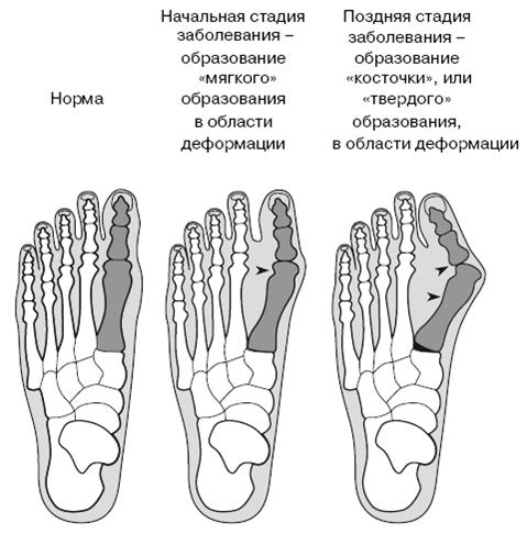 Все о здоровье ваших ног.